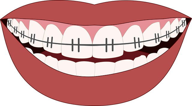 ortodinocie